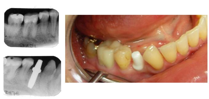 M.H.: 44 Jahre alt, juveniler Diabetes oben links: Zahn 44 mit chronischer Entzündung am 23.2.2007. unten links: Entfernung und Sofortimplantat am 11.1.2008; ohne Einsatz von Antibiotika und Schmerzmitteln. rechts: Implantat am 11.4.2008. Reizlose Zahnfleischverhältnisse. Einer Überkronung steht nichts im Wege.