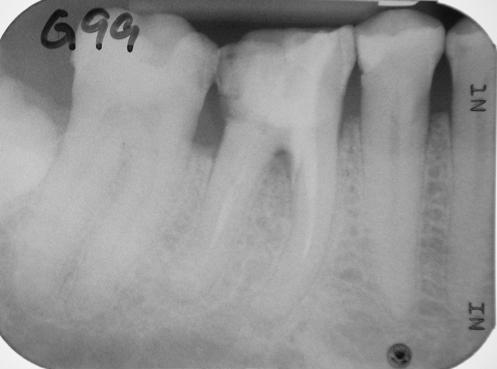 22.4.2010 fast vollständige Knochenregeneration apikal