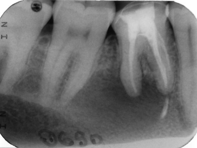 zähne sind druckempfindlich