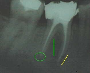 Quelle: www.tarzahn.de, Bearbeitung durch Dr. Guggenbichler