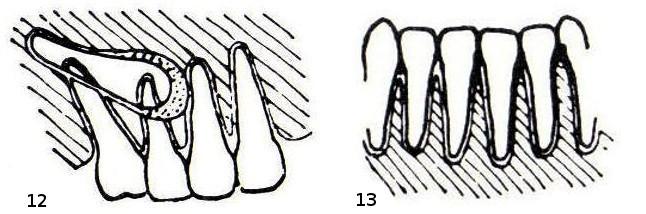 12 – Zahn impaktiert: verlagerter Zahn im Oberkiefer rechts. 13 – Gingivitis (nicht im Röntgenbild sichtbar)