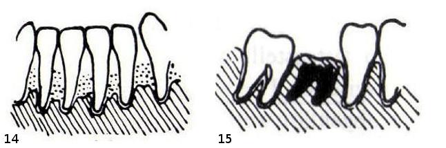 14 – Parodontitis (H3). 15 – Wurzelrest, im Knochen eingewachsen (Wr)