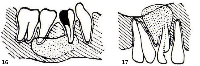 16 – Zyste im Unterkiefer. 17 – Zyste im Oberkiefer mit dadurch bedingter Zahnkippung.