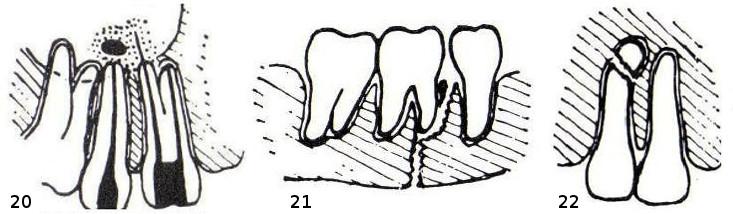 20 – links: überstopftes Wurzelfüllmaterial in der Kieferhöhle, rechts: Metallstift als Wurzelfüllung mit Entzündungszone. 21 – gebrochener Unterkiefer mit Zahn im Bruchspalt. 22 – Zahn mit Bruch an der Wurzelspitze