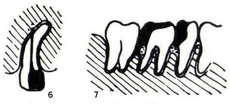 6 – Wurzelkanalperforation bei abgekrümmter Wurzelspitze, Restkanalinhalt infiziert. 7 – überstehende Füllungen mit parodontalem Knochenabbau