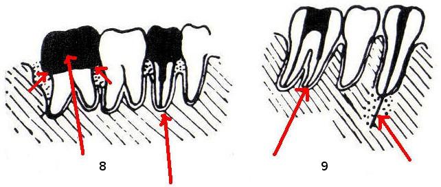 8 – links: Krone mit überstehenden Rändern, rechts: Stiftzahn mit parodontalem Knochenabbau (H1). 9 – links: Fremdkörper (Exstirpationsnadel) im Wurzelkanal, rechts: über das Foramen apicale in den Knochen getriebener Metallstift.