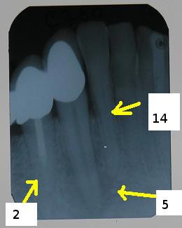 Beispiel für einen klinischen Fall: 2 – nicht vollständig abgefüllter Wurzelkanal. 5 – ostitischer Herd, unscharf begrenzt (A2). 14 – Parodontose, horizontaler Knochenabbau (H1)