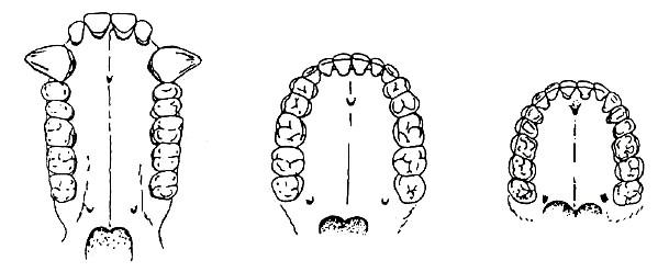 Abb. 1: Der Kieferbogen der Pongiden und Hominiden. Links Gorilla, Mitt Homo sapiens, rechts Homo australopithecus (vor 5 Millionen Jahren) (Collins). Der Rundbogen, wie er bis vor 50 Jahren typisch war, kennzeichnet die menschliche Rasse im Unterscihed zur Linie der Pongiden. Entnommen aus Schöhl, a.a.O., S. 109.
